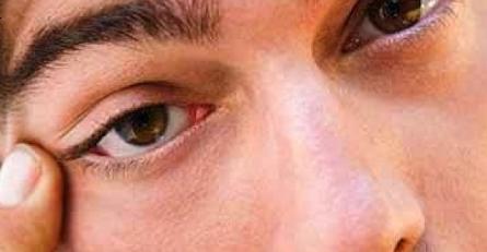 nháy mắt trái ở nam