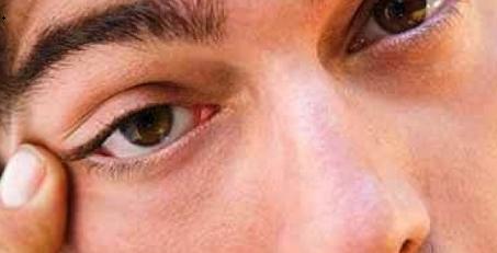 Giật mắt trái nam, nháy mắt trái nam liên tục có điềm gì ?